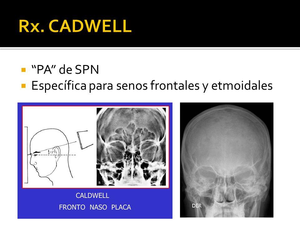 Ránula: colección de mucina proveniente de la ruptura del conducto de una glándula salival, por lo general causada por un previo trauma local