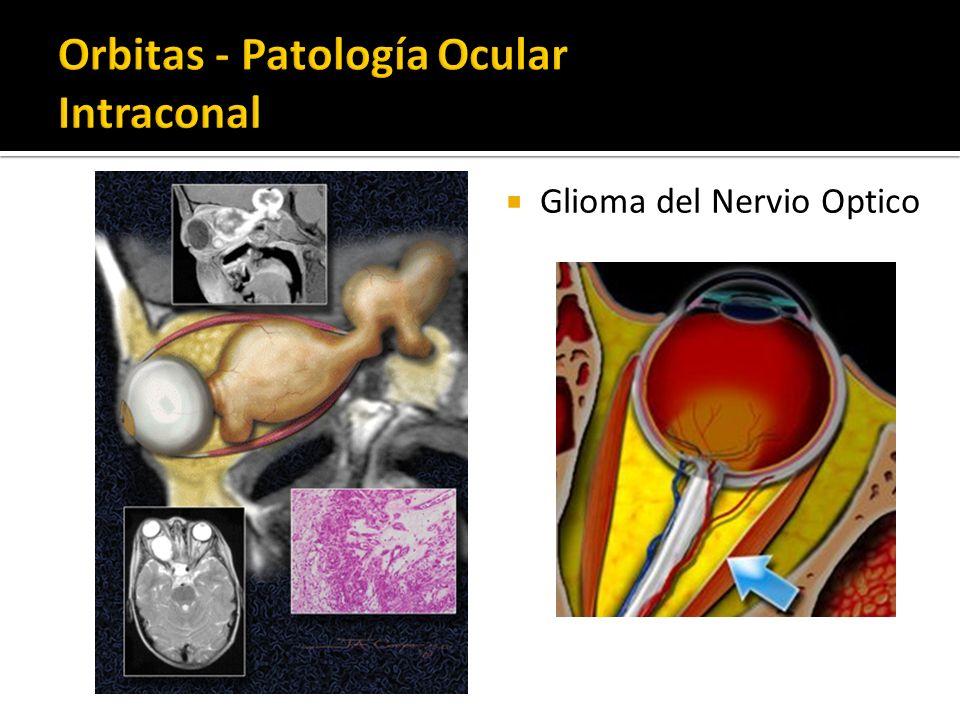 Glioma del Nervio Optico