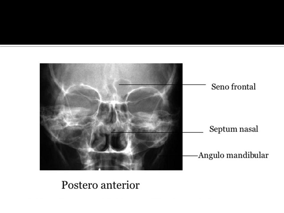 Usa para fracturas de tercio medio facial.