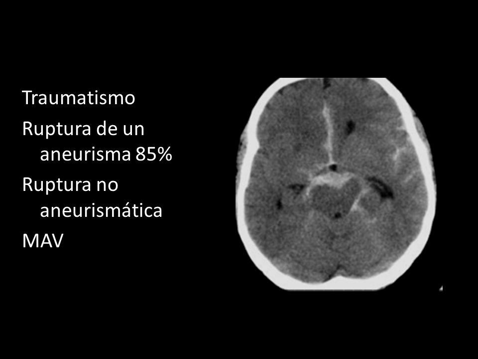 Traumatismo Ruptura de un aneurisma 85% Ruptura no aneurismática MAV