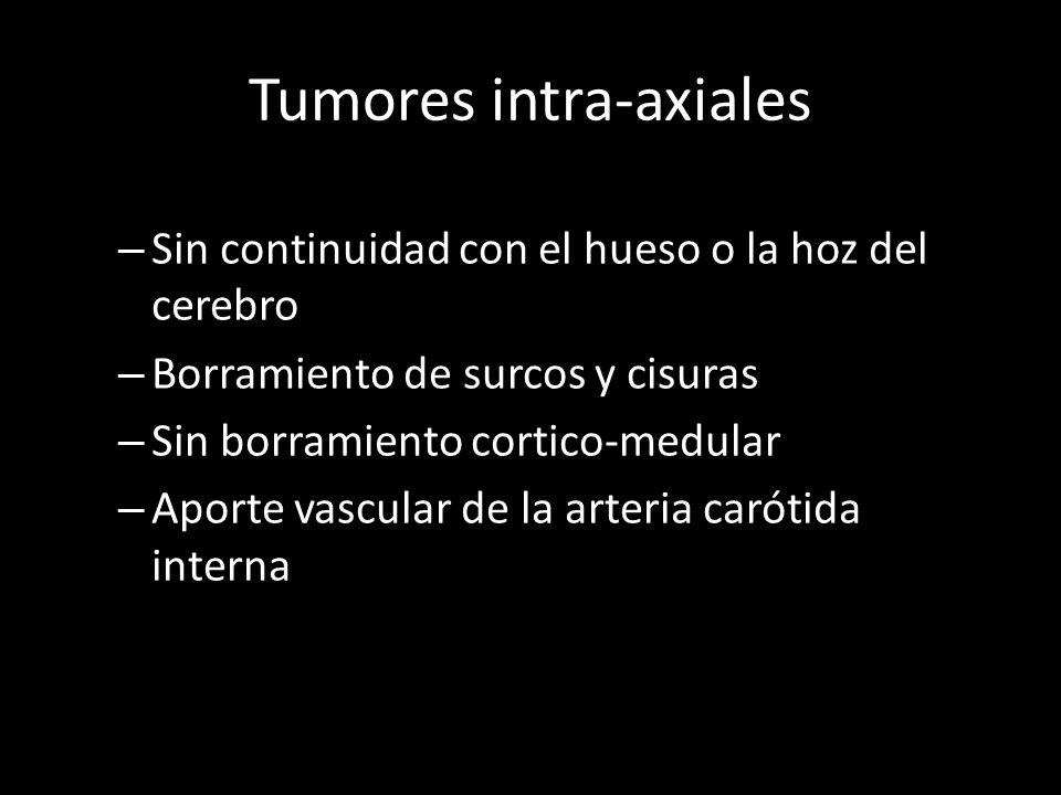 Tumores intra-axiales – Sin continuidad con el hueso o la hoz del cerebro – Borramiento de surcos y cisuras – Sin borramiento cortico-medular – Aporte