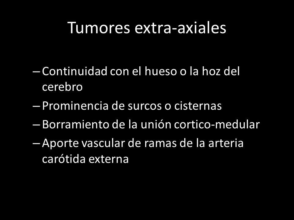 Tumores extra-axiales – Continuidad con el hueso o la hoz del cerebro – Prominencia de surcos o cisternas – Borramiento de la unión cortico-medular –