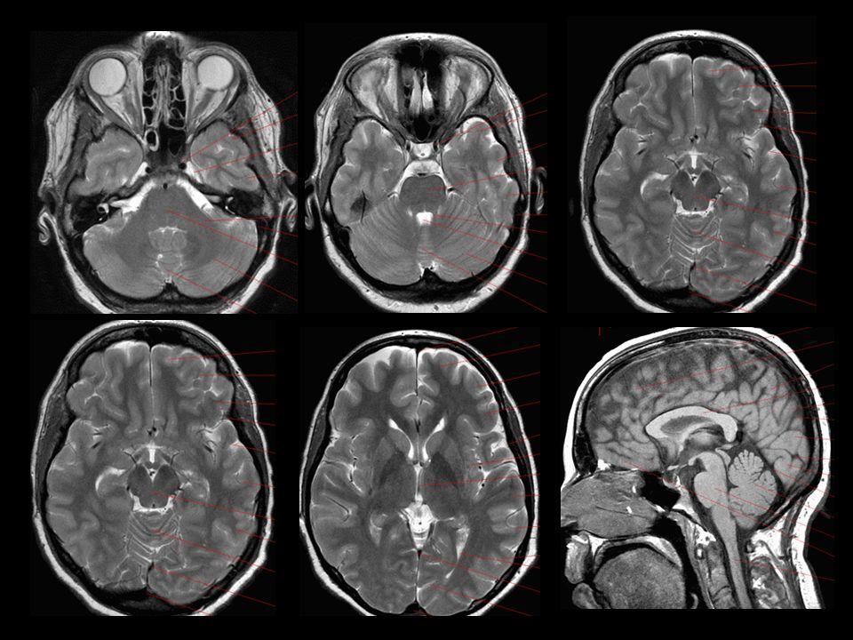 Edema cerebral Edema vasogénico Edema cititóxico