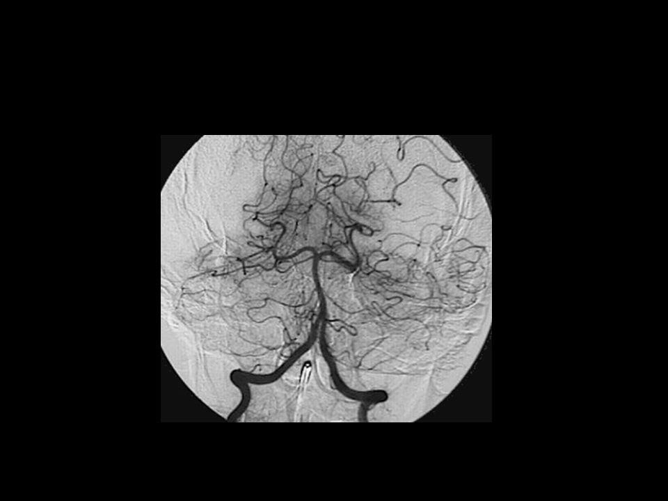Higroma subdural
