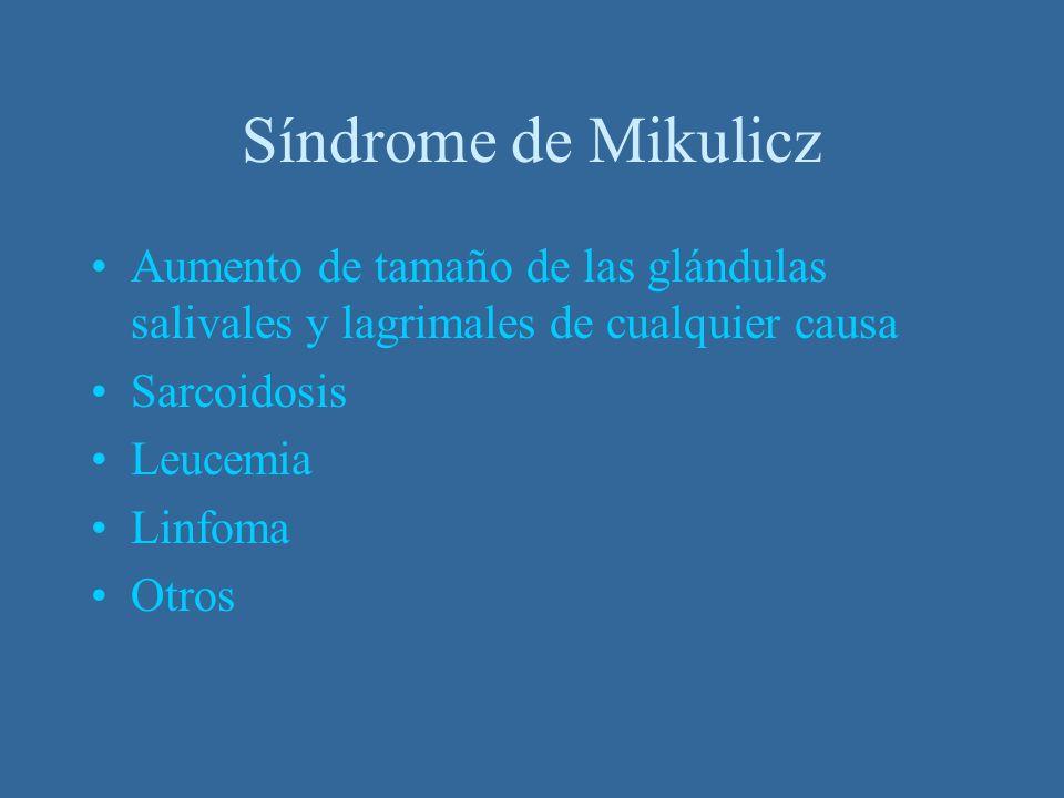 Síndrome de Mikulicz Aumento de tamaño de las glándulas salivales y lagrimales de cualquier causa Sarcoidosis Leucemia Linfoma Otros