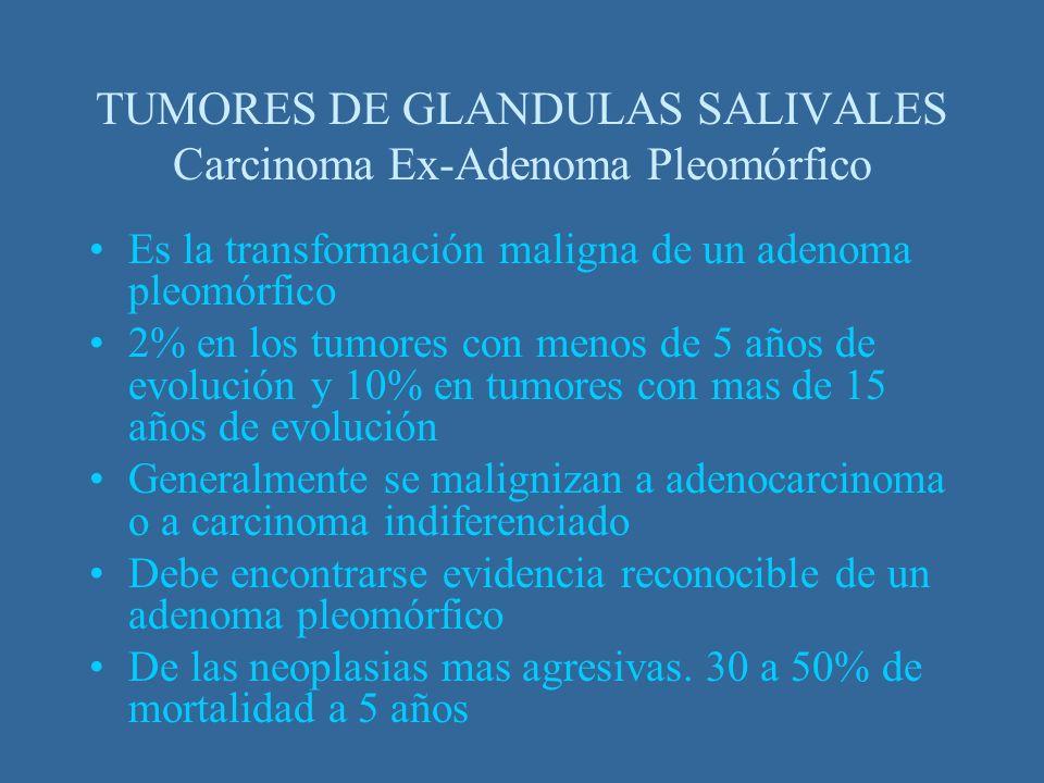 Es la transformación maligna de un adenoma pleomórfico 2% en los tumores con menos de 5 años de evolución y 10% en tumores con mas de 15 años de evolu