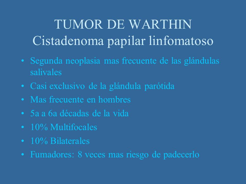 TUMOR DE WARTHIN Cistadenoma papilar linfomatoso Segunda neoplasia mas frecuente de las glándulas salivales Casi exclusivo de la glándula parótida Mas