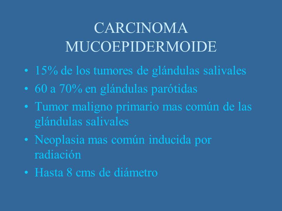CARCINOMA MUCOEPIDERMOIDE 15% de los tumores de glándulas salivales 60 a 70% en glándulas parótidas Tumor maligno primario mas común de las glándulas