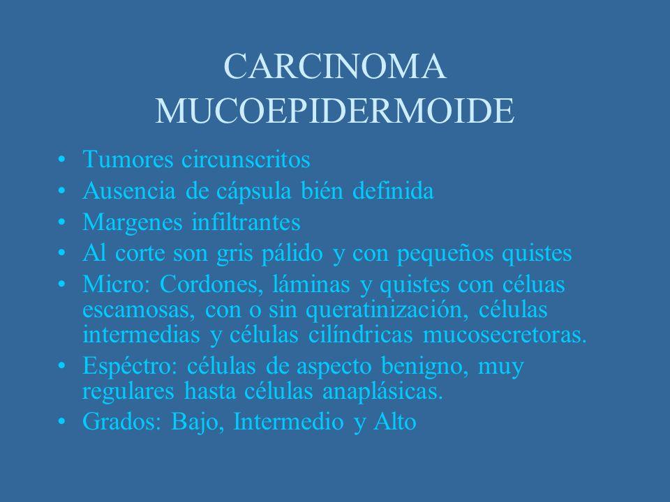 Tumores circunscritos Ausencia de cápsula bién definida Margenes infiltrantes Al corte son gris pálido y con pequeños quistes Micro: Cordones, láminas