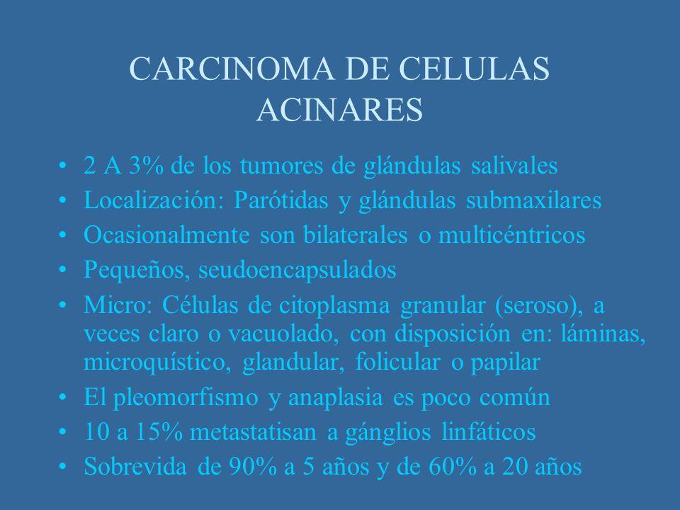 CARCINOMA DE CELULAS ACINARES 2 A 3% de los tumores de glándulas salivales Localización: Parótidas y glándulas submaxilares Ocasionalmente son bilater