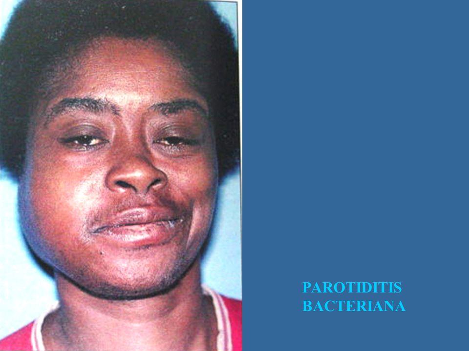 PAROTIDITIS BACTERIANA