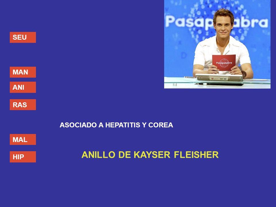 SEU MAN ANI RAS MAL HIP ASOCIADO A HEPATITIS Y COREA ANILLO DE KAYSER FLEISHER