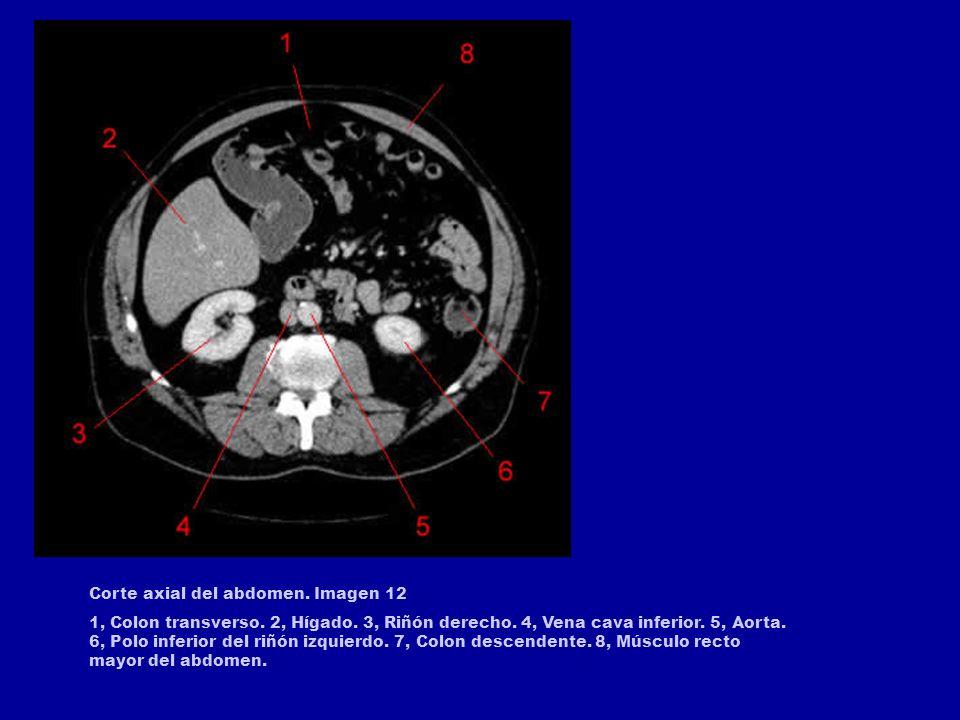 Corte axial del abdomen. Imagen 8 1, Vena cava inferior. 2, Riñón derecho. 3, Origen de la arteria renal derecha. 4, Aorta. 5, Riñón izquierdo. 6, Col