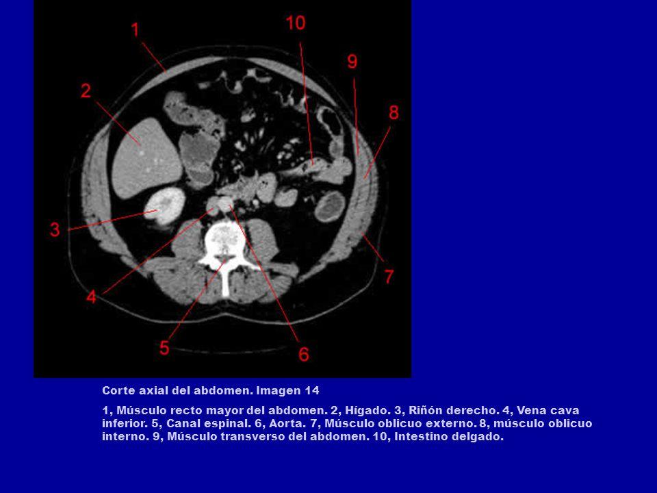 Corte axial del abdomen. Imagen 12 1, Colon transverso. 2, Hígado. 3, Riñón derecho. 4, Vena cava inferior. 5, Aorta. 6, Polo inferior del riñón izqui