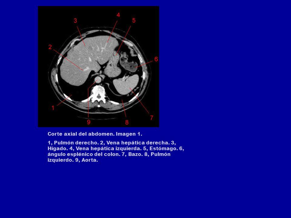 Corte axial del abdomen.Imagen 1. 1, Pulmón derecho.
