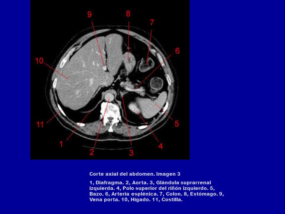 Corte axial del abdomen. Imagen 1. 1, Pulmón derecho. 2, Vena hepática derecha. 3, Hígado. 4, Vena hepática izquierda. 5, Estómago. 6, ángulo esplénic