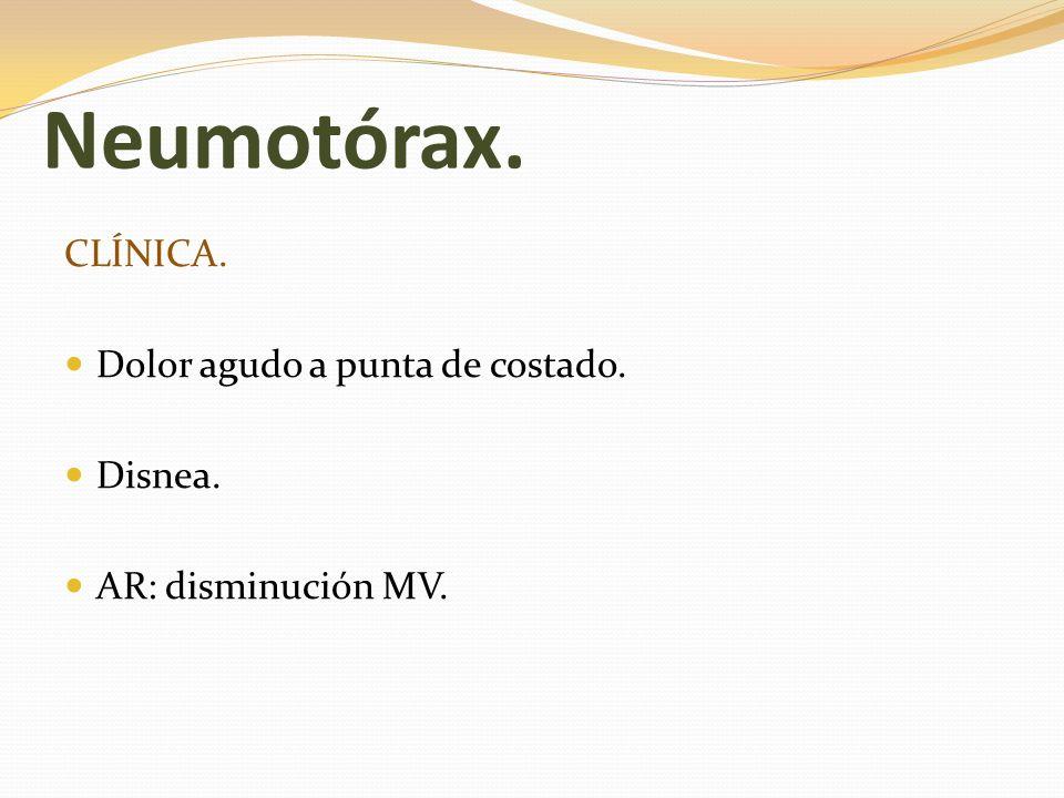 Neumotórax. CLÍNICA. Dolor agudo a punta de costado. Disnea. AR: disminución MV.