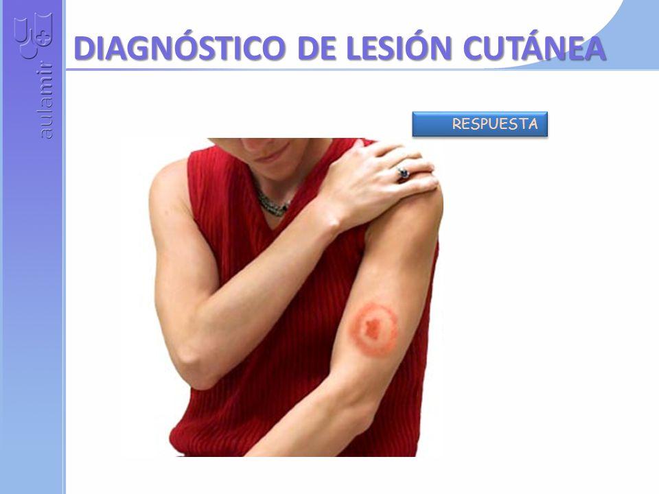 TOS + FIEBRE + HEMOPTISIS + VARIOS NÓDULOS PULMONARES RESPUESTA FIEBRE + DISNEA + TAQUICARDIAS + DISFAGIA + MALABSORCIÓN RESPUESTA NIÑO CON FIEBRE + T