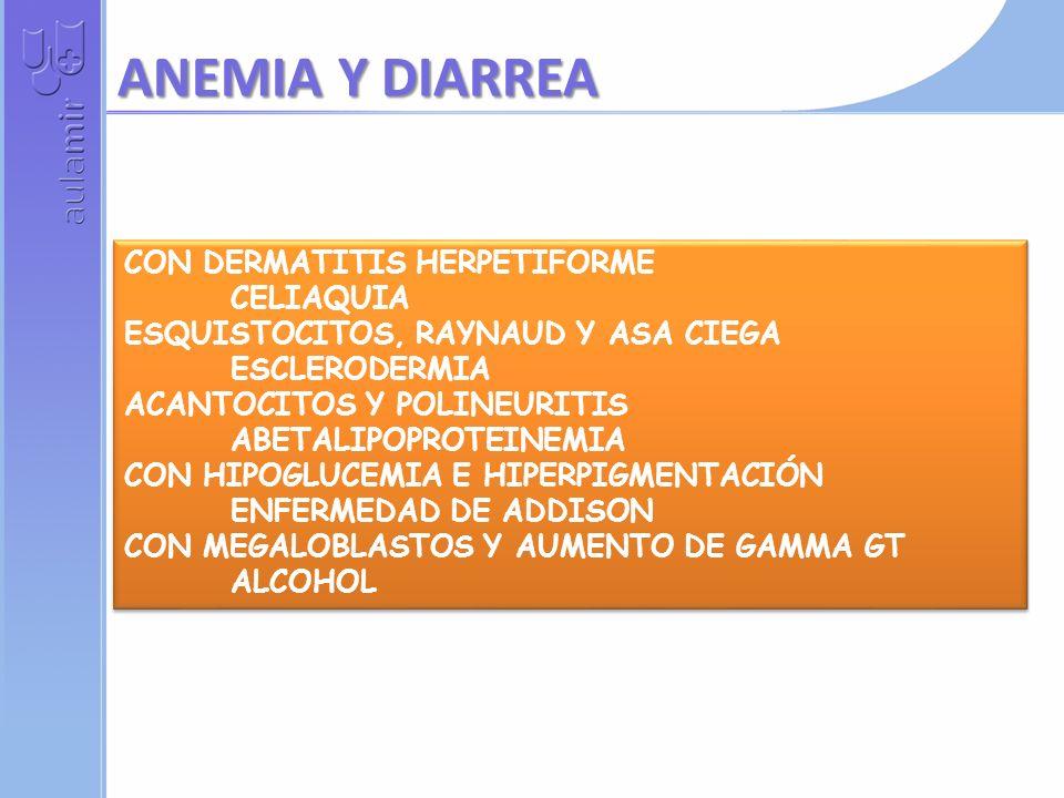 HIPERCALCEMIA E HIPOPOTASEMIA TRATAMIENTO CON TIACIDAS EN CRISIS PAROXÍSTICAS FEOCROMOCITOMA CON HIPERPIGMENTACION E HIPOPOTASEMIA CUSHING ECTÓPICO CO