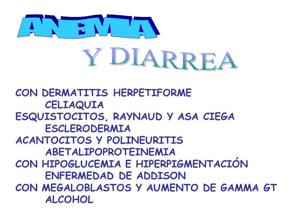 CON DERMATITIS HERPETIFORME CELIAQUIA ESQUISTOCITOS, RAYNAUD Y ASA CIEGA ESCLERODERMIA ACANTOCITOS Y POLINEURITIS ABETALIPOPROTEINEMIA CON HIPOGLUCEMIA E HIPERPIGMENTACIÓN ENFERMEDAD DE ADDISON CON MEGALOBLASTOS Y AUMENTO DE GAMMA GT ALCOHOL