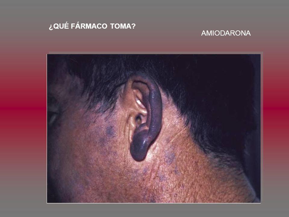 ENERO 2007 ONCOLOGÍA DEFINICIÓN DE GANGLIO CENTINELA LOCALIZAR CÁNCER TD CON NÓDULOS SUPRACLAVICULAR TRATAMIENTO DE LA DISNEA COMO EVENTO TERMINAL TRATAMIENTO DEL DOLOR EN EL CÁNCER GERIATRÍA ESCALAS DE EVALUACIÓN GERIATRÍA (ACTIVIDADES DIARIAS) ANDADOR CON RUEDAS TRATAMIENTO ÚLCERAS POR DECÚBITO TOXICOLOGÍA CIRUGÍA REPARACIÓN HERIDAS CLASIFICACIÓN DE LA ASA CIRUGÍA EN PACIENTES CON PROBLEMAS CARDIACOS GENÉTICA