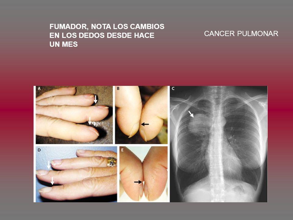 FUMADOR, NOTA LOS CAMBIOS EN LOS DEDOS DESDE HACE UN MES CANCER PULMONAR