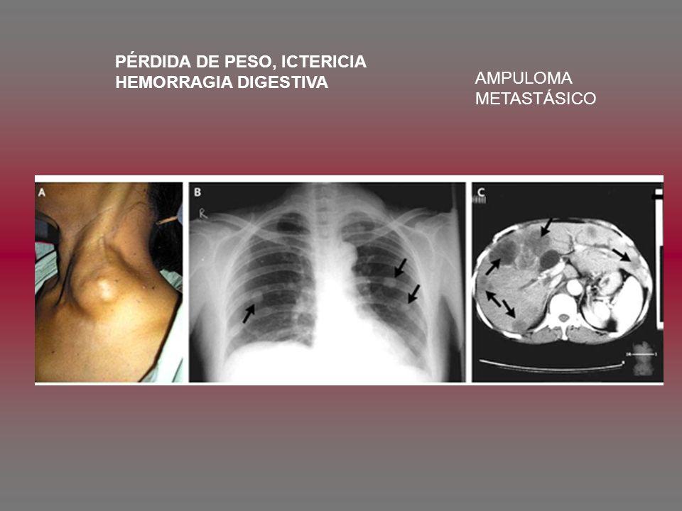 PÉRDIDA DE PESO, ICTERICIA HEMORRAGIA DIGESTIVA AMPULOMA METASTÁSICO