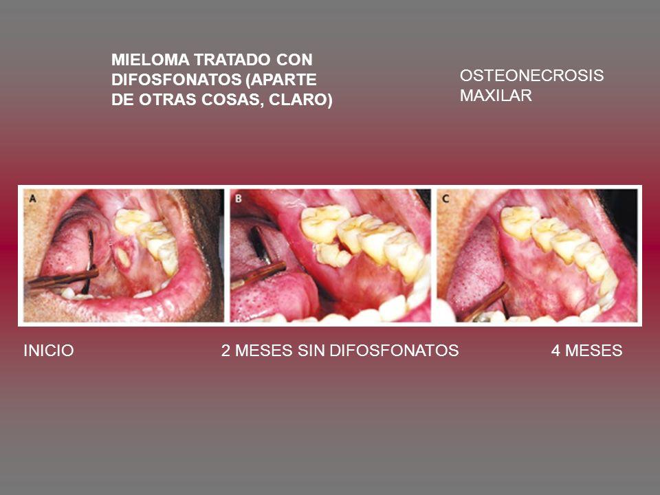 MIELOMA TRATADO CON DIFOSFONATOS (APARTE DE OTRAS COSAS, CLARO) OSTEONECROSIS MAXILAR INICIO2 MESES SIN DIFOSFONATOS4 MESES