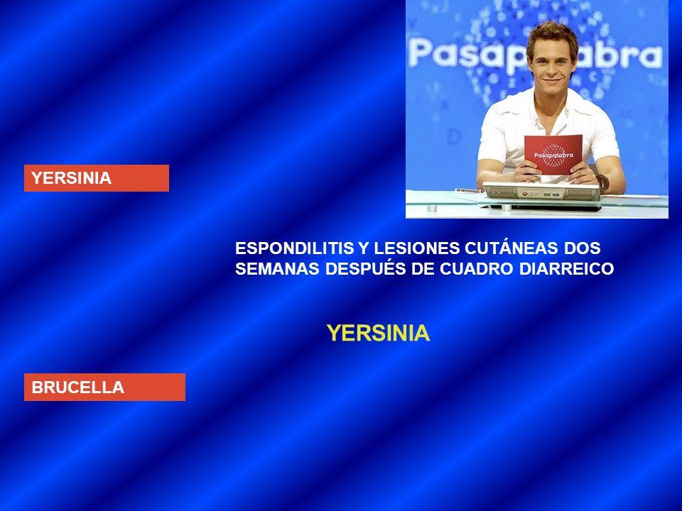 YERSINIA BRUCELLA ESPONDILITIS Y LESIONES CUTÁNEAS DOS SEMANAS DESPUÉS DE CUADRO DIARREICO YERSINIA
