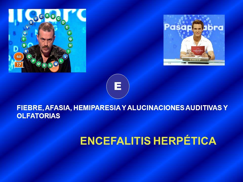 E FIEBRE, AFASIA, HEMIPARESIA Y ALUCINACIONES AUDITIVAS Y OLFATORIAS ENCEFALITIS HERPÉTICA