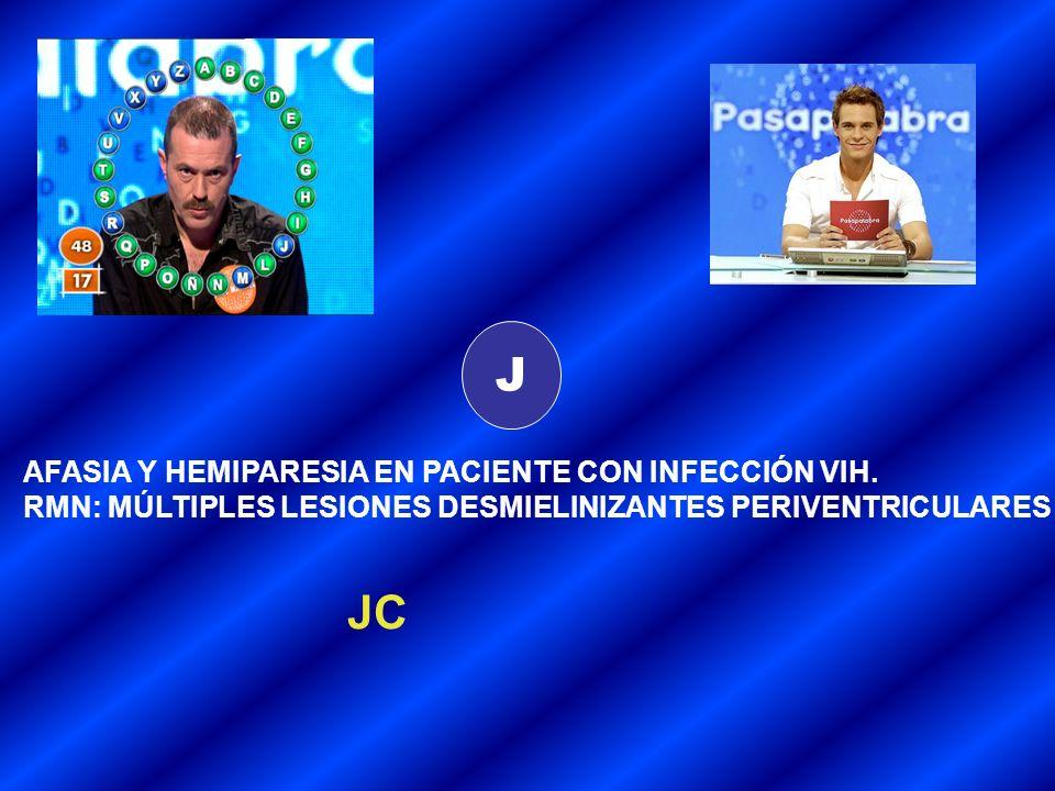 J AFASIA Y HEMIPARESIA EN PACIENTE CON INFECCIÓN VIH.