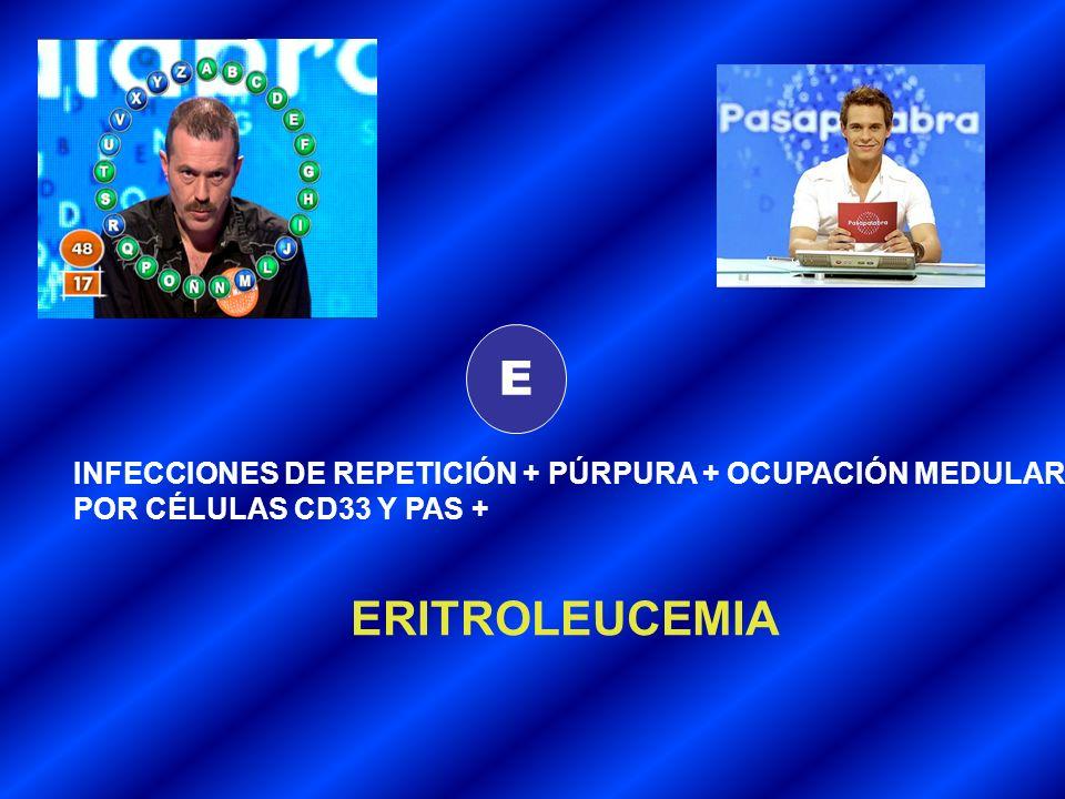 E INFECCIONES DE REPETICIÓN + PÚRPURA + OCUPACIÓN MEDULAR POR CÉLULAS CD33 Y PAS + ERITROLEUCEMIA