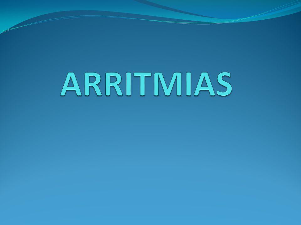 TAQUIARRITMIAS: extrasístoles Auriculares: - Onda P + QRS estrecho.