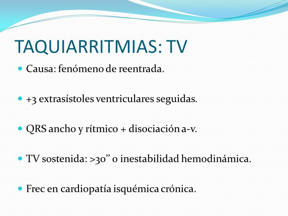 TAQUIARRITMIAS: TV Causa: fenómeno de reentrada. +3 extrasístoles ventriculares seguidas. QRS ancho y rítmico + disociación a-v. TV sostenida: >30 o i