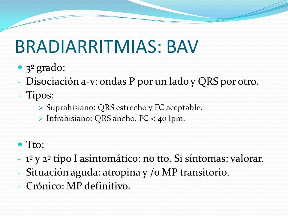BRADIARRITMIAS: BAV 3º grado: - Disociación a-v: ondas P por un lado y QRS por otro. - Tipos: Suprahisiano: QRS estrecho y FC aceptable. Infrahisiano: