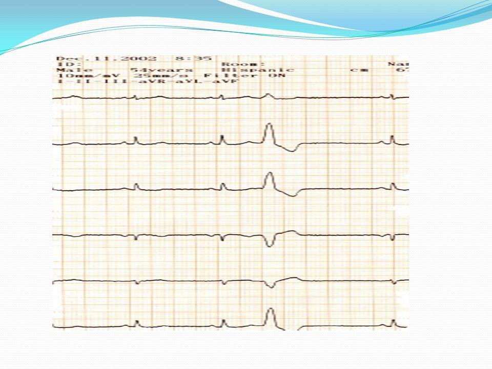 TAQUIARRITMIAS: TQSV No ondas P + QRS estrecho y rítmico.