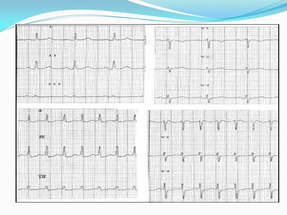 BRADIARRITMIAS: BAV 3º grado: - Disociación a-v: ondas P por un lado y QRS por otro.