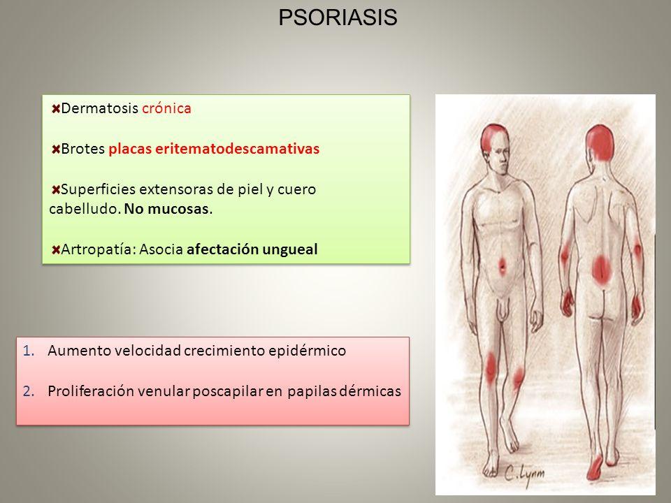 Dermatosis crónica Brotes placas eritematodescamativas Superficies extensoras de piel y cuero cabelludo. No mucosas. Artropatía: Asocia afectación ung