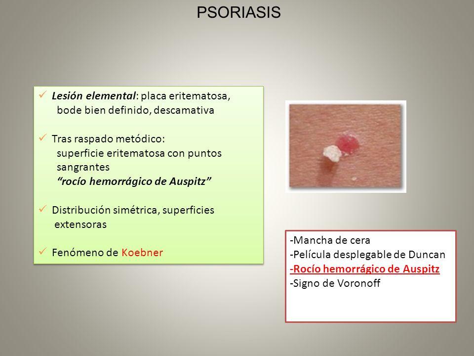 Lesión elemental: placa eritematosa, bode bien definido, descamativa Tras raspado metódico: superficie eritematosa con puntos sangrantes rocío hemorrá