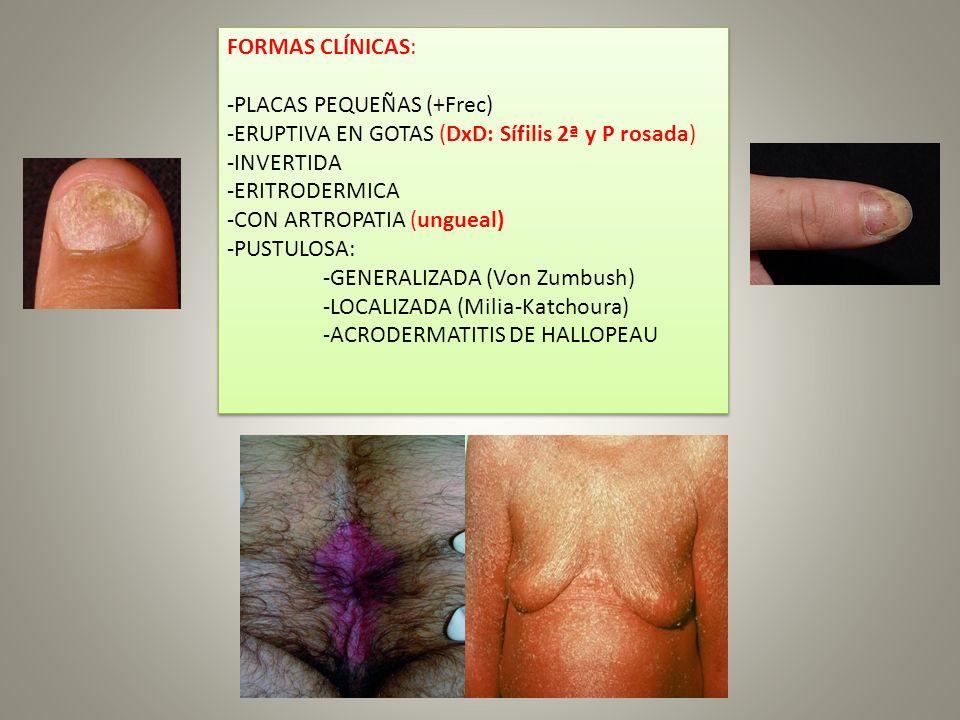 FORMAS CLÍNICAS: -PLACAS PEQUEÑAS (+Frec) -ERUPTIVA EN GOTAS (DxD: Sífilis 2ª y P rosada) -INVERTIDA -ERITRODERMICA -CON ARTROPATIA (ungueal) -PUSTULO