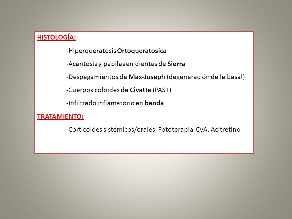 HISTOLOGÍA: -Hiperqueratosis Ortoqueratosica -Acantosis y papilas en dientes de Sierra -Despegamientos de Max-Joseph (degeneración de la basal) -Cuerp