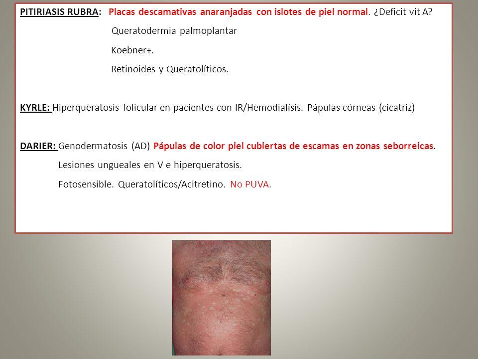PITIRIASIS RUBRA: Placas descamativas anaranjadas con islotes de piel normal. ¿Deficit vit A? Queratodermia palmoplantar Koebner+. Retinoides y Querat
