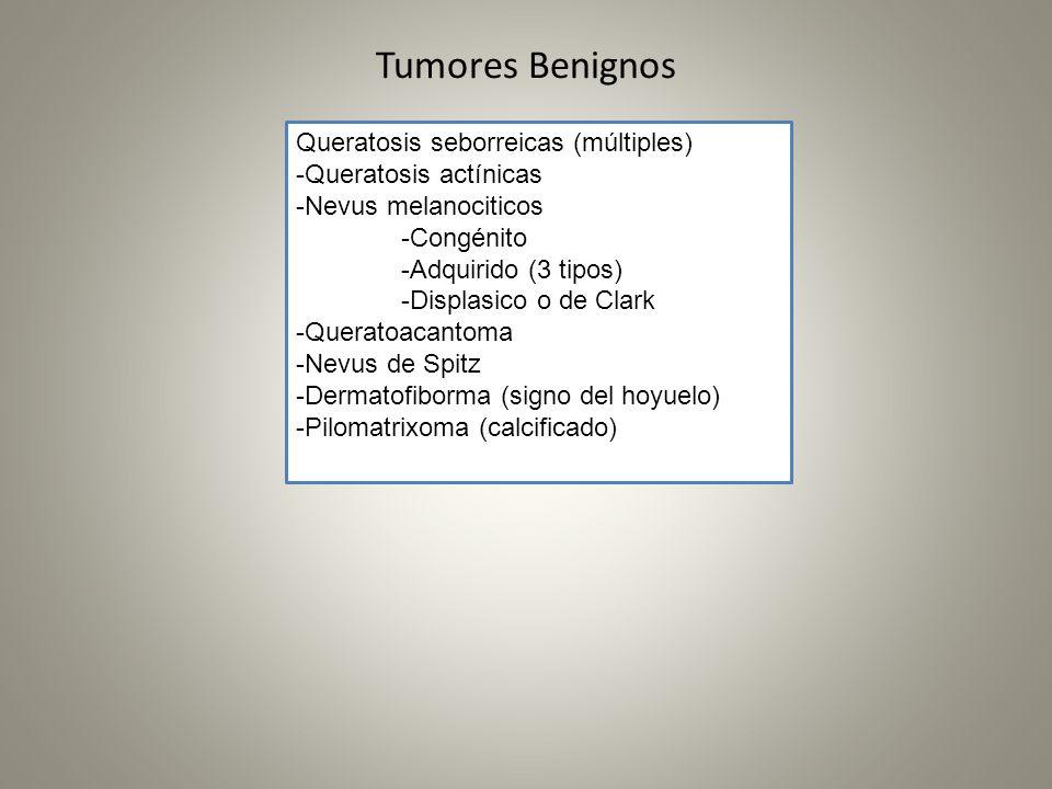Tumores Benignos Queratosis seborreicas (múltiples) -Queratosis actínicas -Nevus melanociticos -Congénito -Adquirido (3 tipos) -Displasico o de Clark