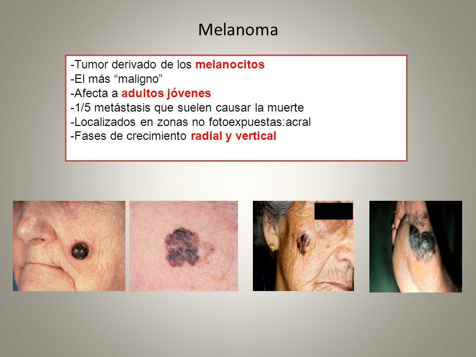 Melanoma -Tumor derivado de los melanocitos -El más maligno -Afecta a adultos jóvenes -1/5 metástasis que suelen causar la muerte -Localizados en zona