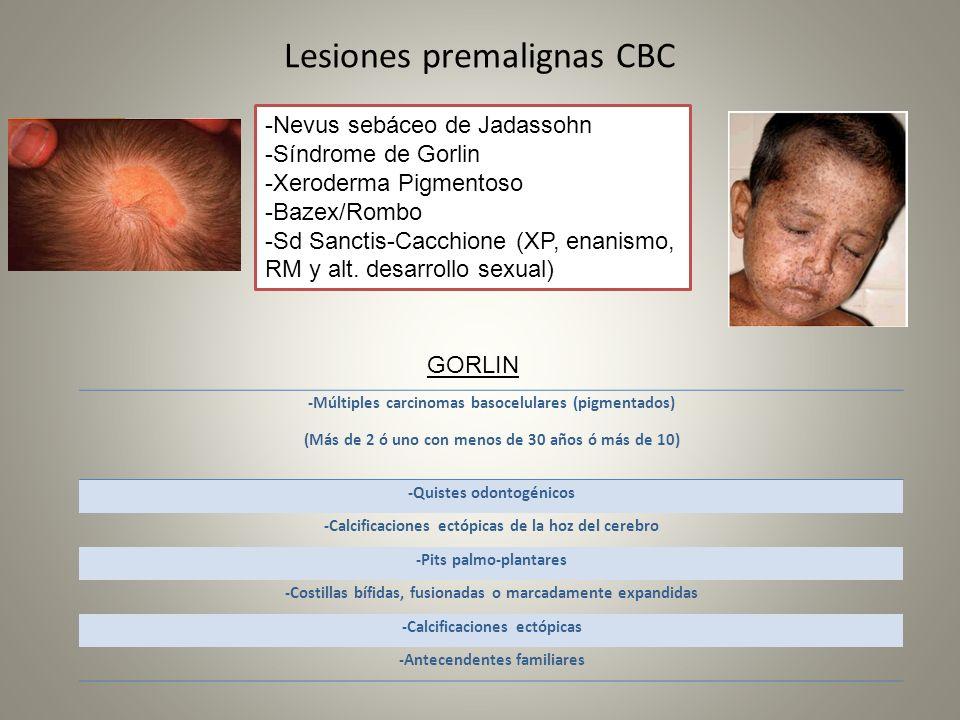 Lesiones premalignas CBC -Múltiples carcinomas basocelulares (pigmentados) (Más de 2 ó uno con menos de 30 años ó más de 10) -Quistes odontogénicos -C