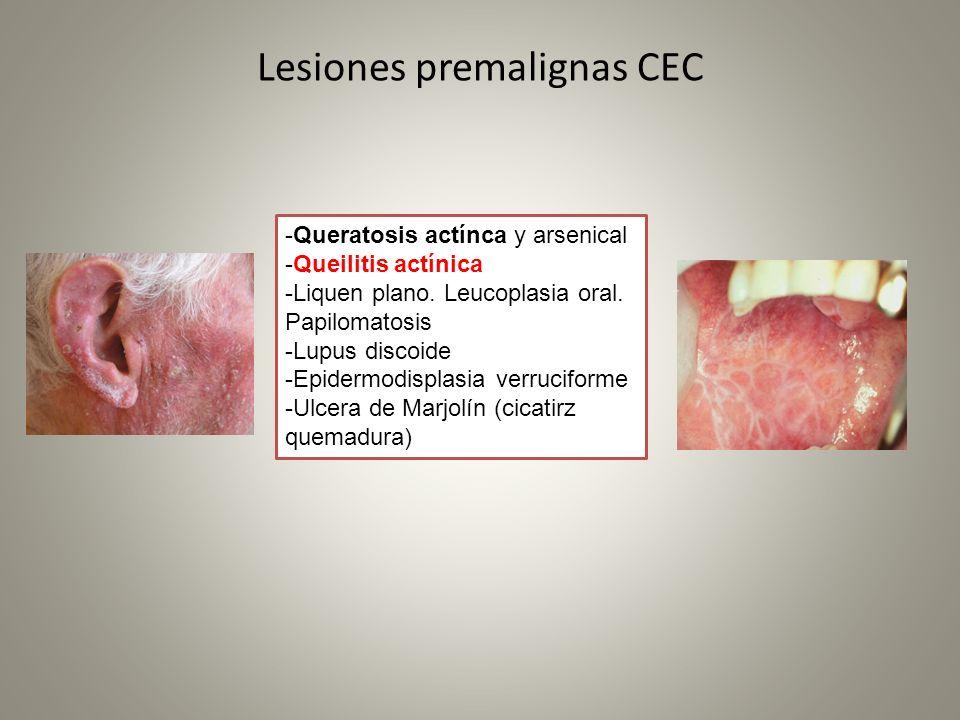 Lesiones premalignas CEC -Queratosis actínca y arsenical -Queilitis actínica -Liquen plano. Leucoplasia oral. Papilomatosis -Lupus discoide -Epidermod