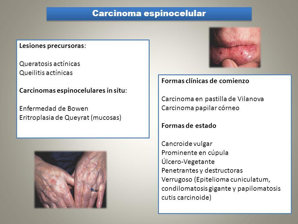 Carcinoma espinocelular Lesiones precursoras: Queratosis actínicas Queilitis actínicas Carcinomas espinocelulares in situ: Enfermedad de Bowen Eritrop