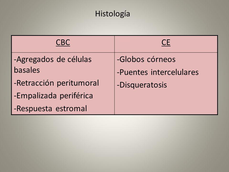 Histología CBCCE -Agregados de células basales -Retracción peritumoral -Empalizada periférica -Respuesta estromal -Globos córneos -Puentes intercelula