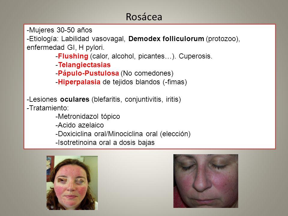 Rosácea -Mujeres 30-50 años -Etiología: Labilidad vasovagal, Demodex folliculorum (protozoo), enfermedad GI, H pylori. -Flushing (calor, alcohol, pica