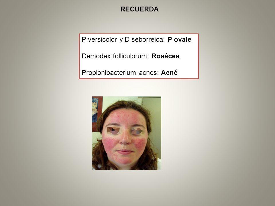 P versicolor y D seborreica: P ovale Demodex folliculorum: Rosácea Propionibacterium acnes: Acné RECUERDA
